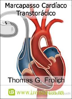 Marcapasso Cardíaco Transtorácico - Thomas G. Frolich